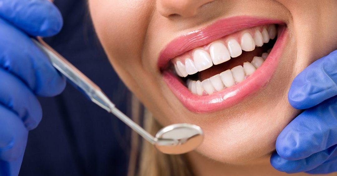 Denti sani – Tutti i consigli per mantenere la bocca in salute!