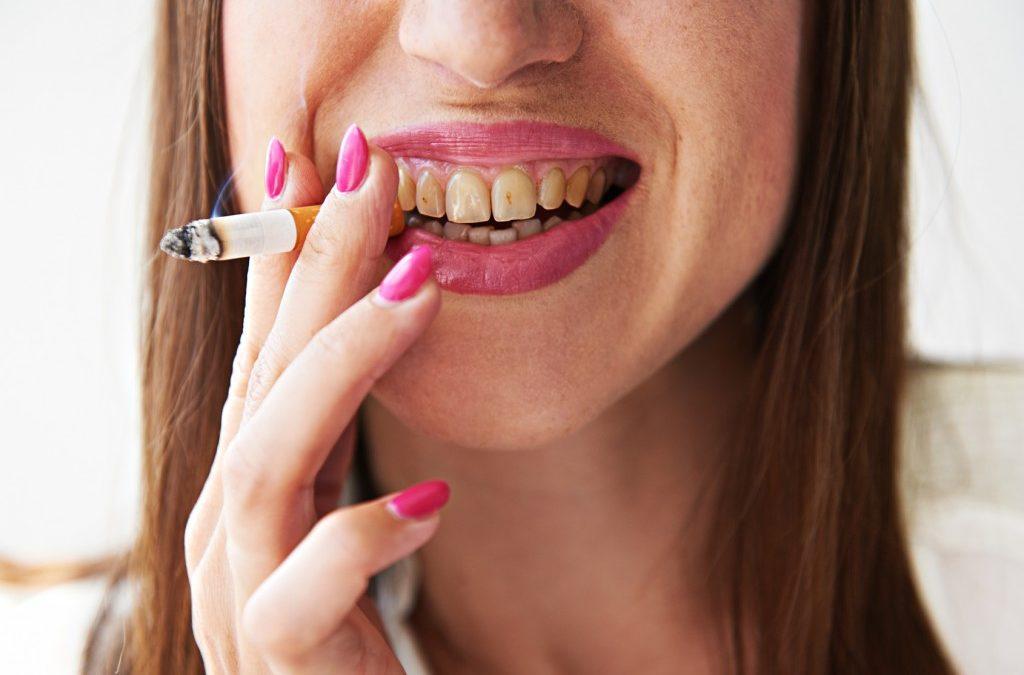 Cancro orale: che cos'è e come riconoscerlo