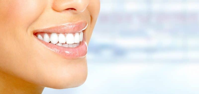 L'estetica del sorriso: faccette dentali e sbiancamento