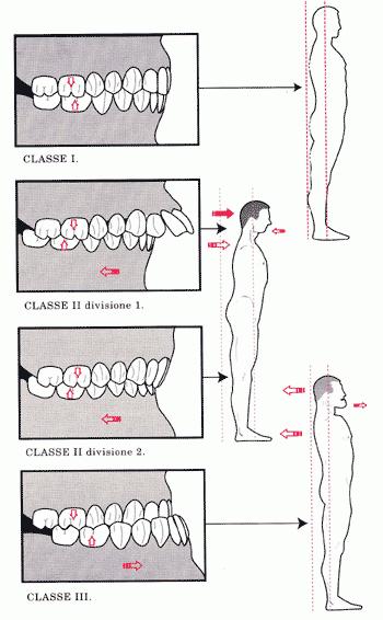 studio-bellemo-la-malocclusione-dentale-classificazione