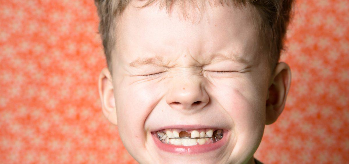 prevenzione dentista dei bambini
