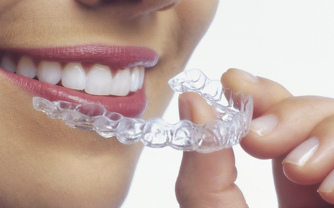 Invisalign – Un rimedio ottimale per i movimenti dentali!