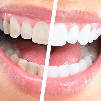 denti macchiati di grigio