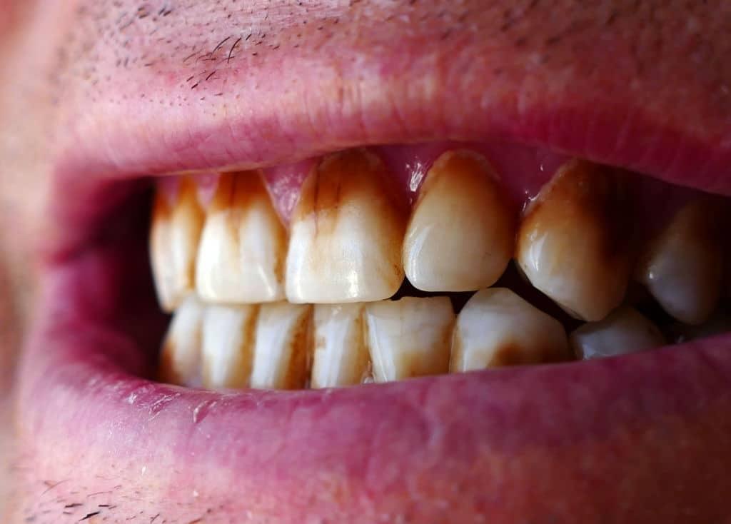 macchie dentali nere