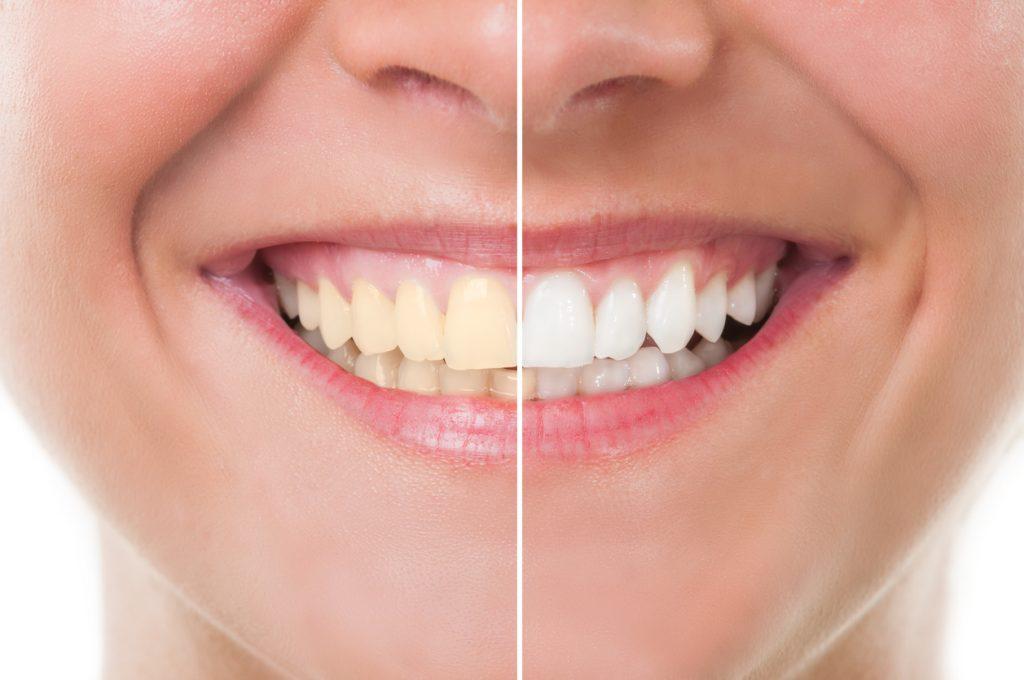 Sorriso di donna con metà denti bianchi e metà denti macchiati