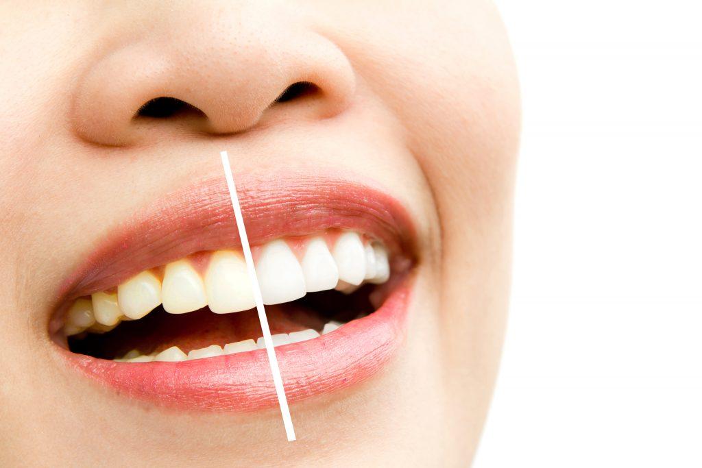 Donna sorridente che si è sottoposta al trattamento di sbaincamento denti e mostra il risultato
