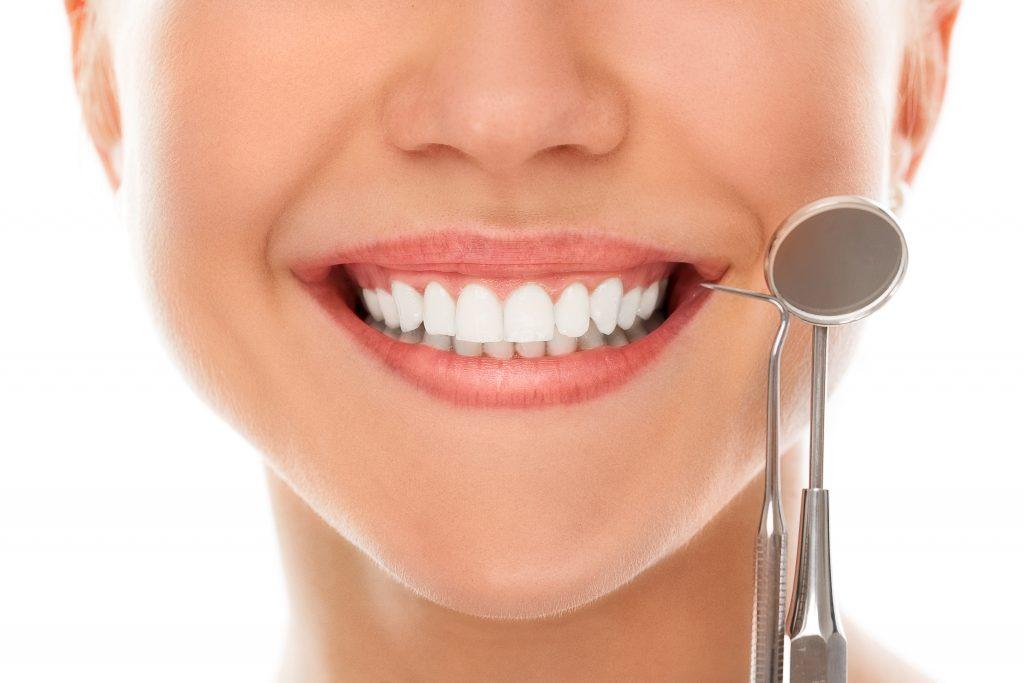 Donna con sorriso che mostra sbiancamento denti