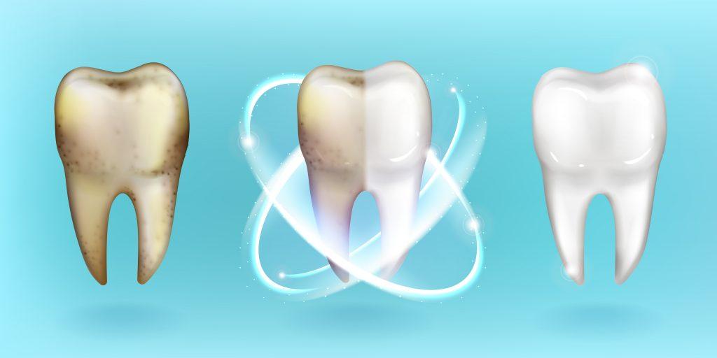 Raffigurazione del percorso di sbiancamento denti: da dente macchiato a dente metà pulito fino a dente completamente bianco