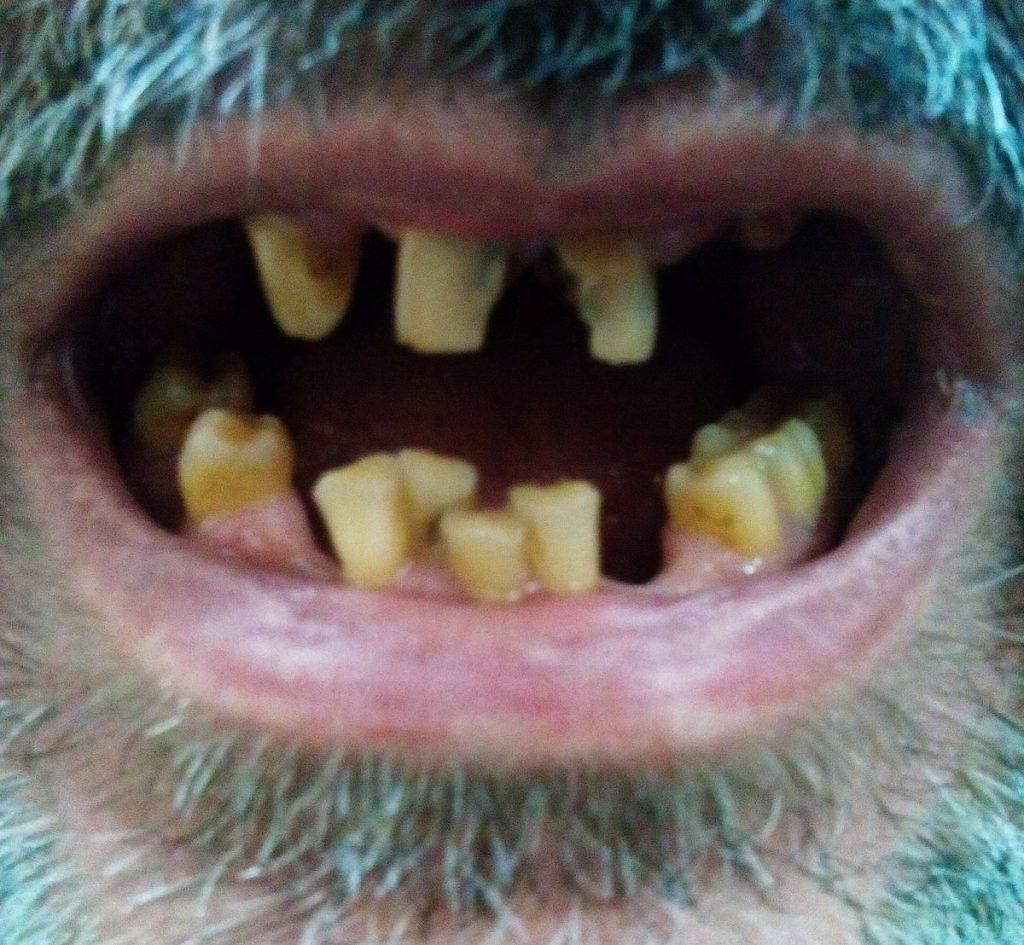 bocca aperta con macchie verdi sui denti