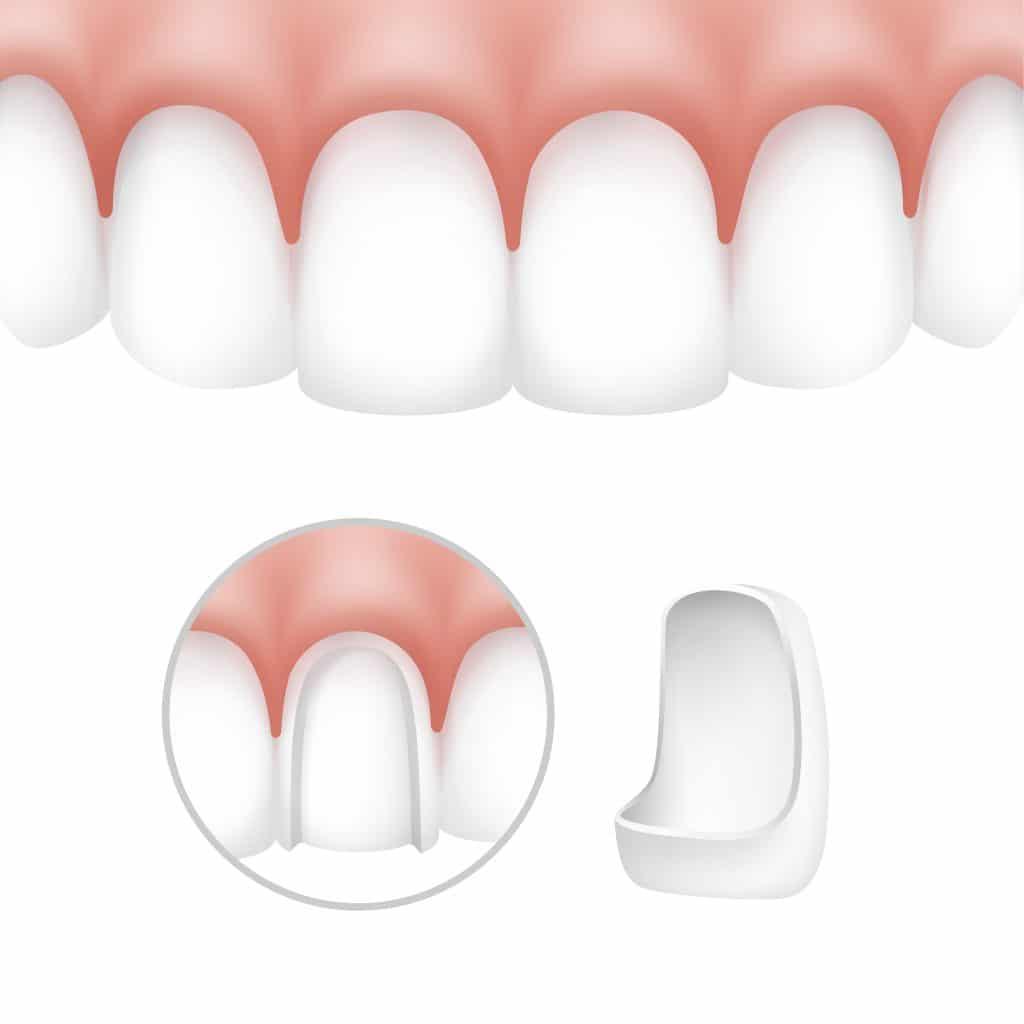 Illustrazione di applicazione delle faccette dentali