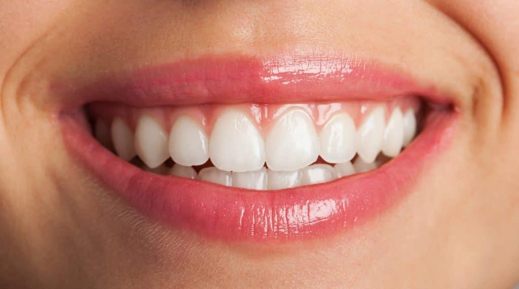 Donna che sorride non mostrando alcun problema di malocclusione dentale