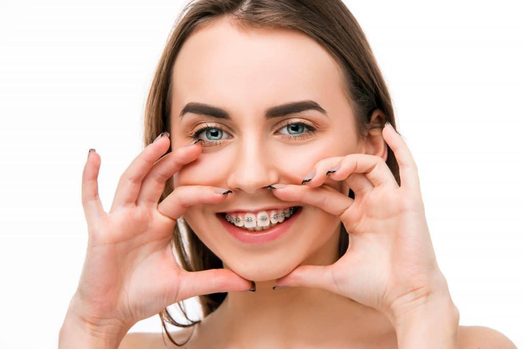 Donna che sorride e mostra apparecchio ortodontico