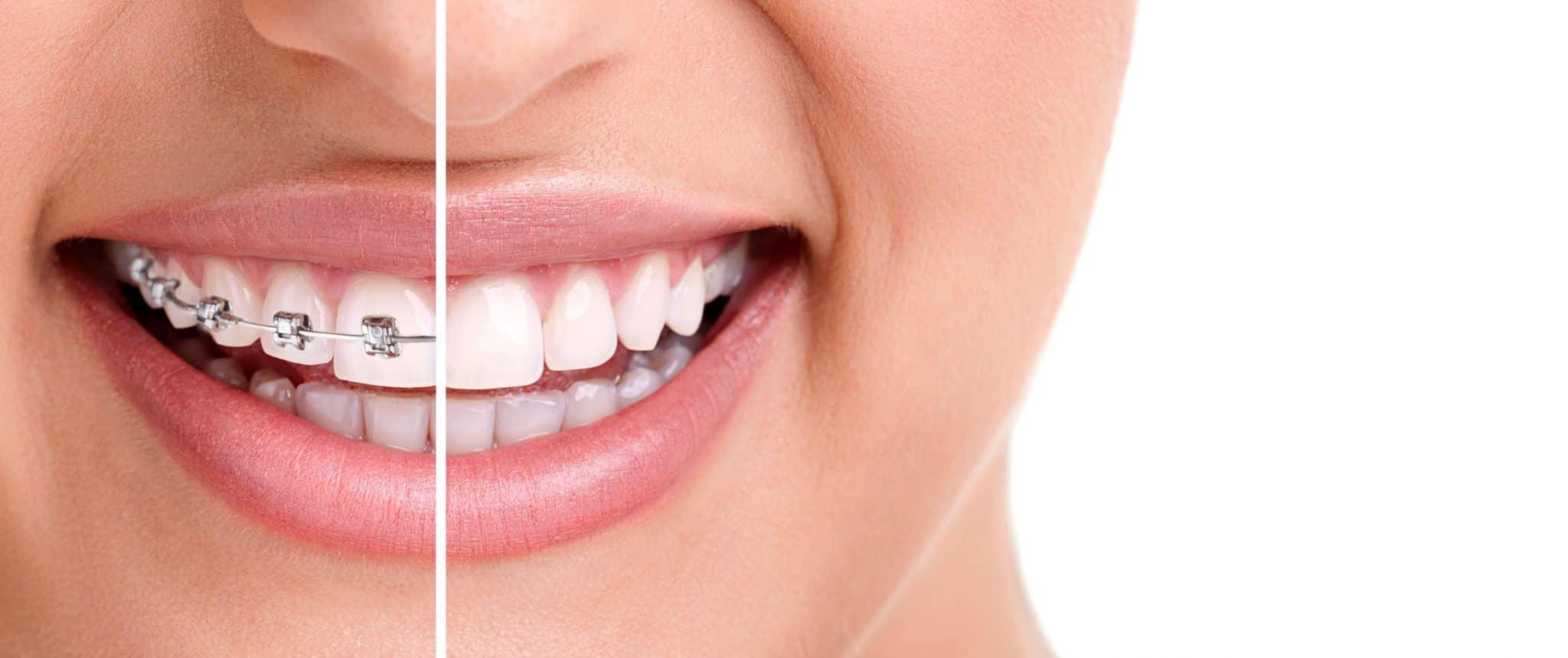 Apparecchio Invisalign o ortodontico: qual è meglio per il tuo sorriso?