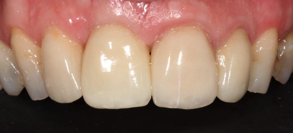 chirurgia_implanto_protesica_dopo