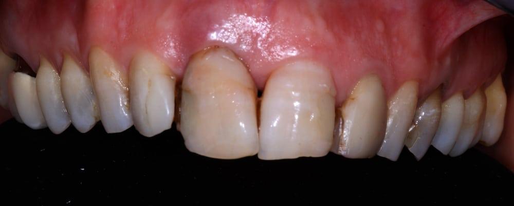 chirurgia_implanto_protesica_prima
