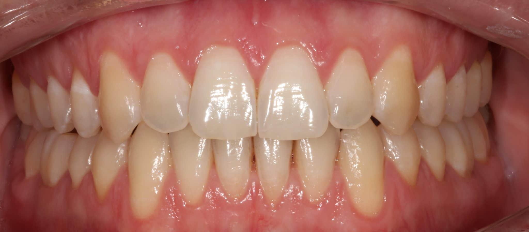 ortodonzia_Dopo