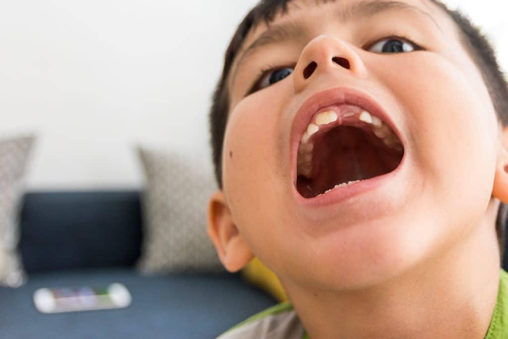 agenesia dentale bambino con bocca aperta