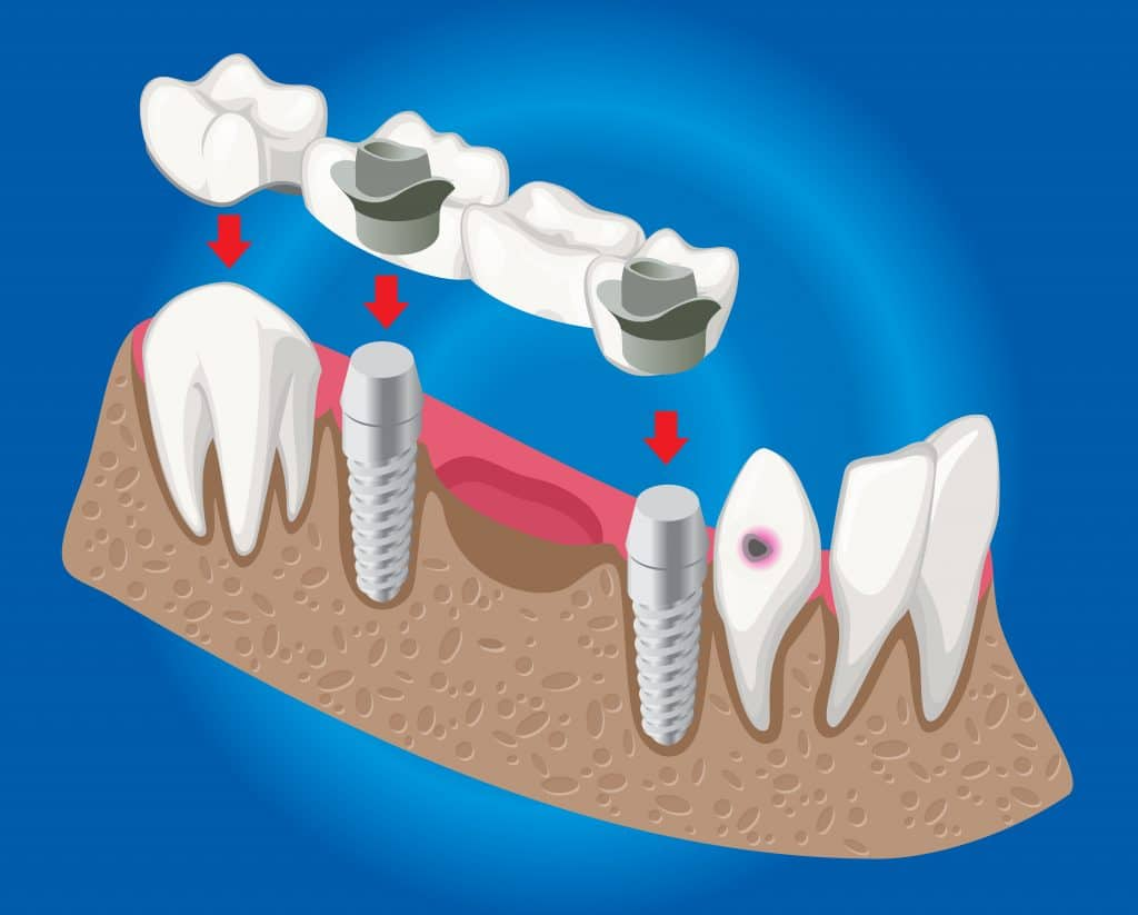 ponte dentale