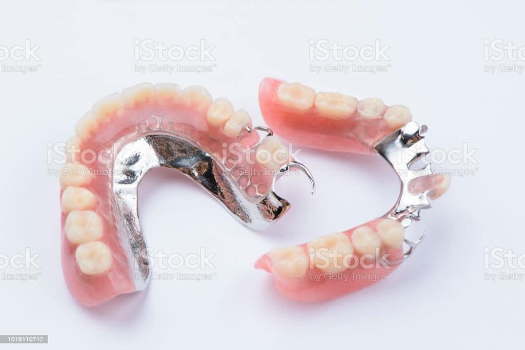 dentiera parziale rimovibile