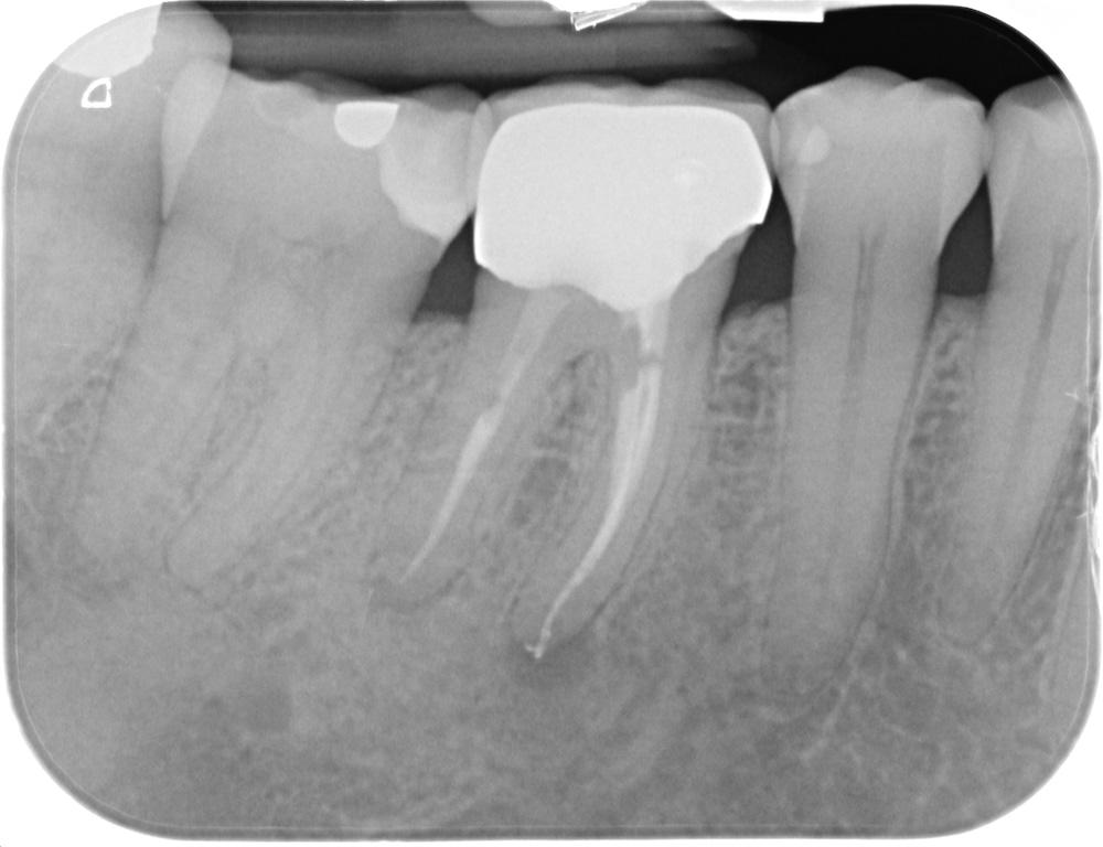 Endodonzia_protesi_dopo al controllo