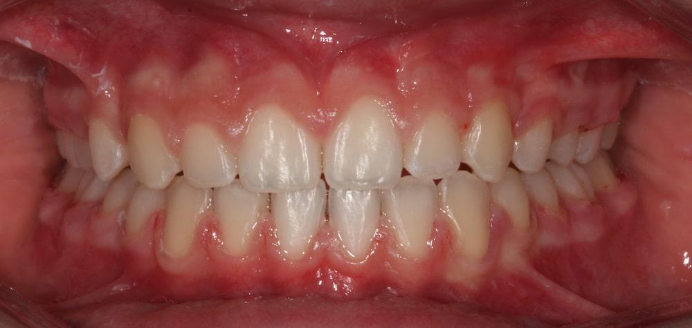 ortodonzia_ apparecchio_ fisso_DOPO