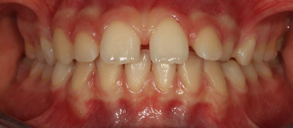 ortodonzia_ apparecchio_ fisso_PRIMA